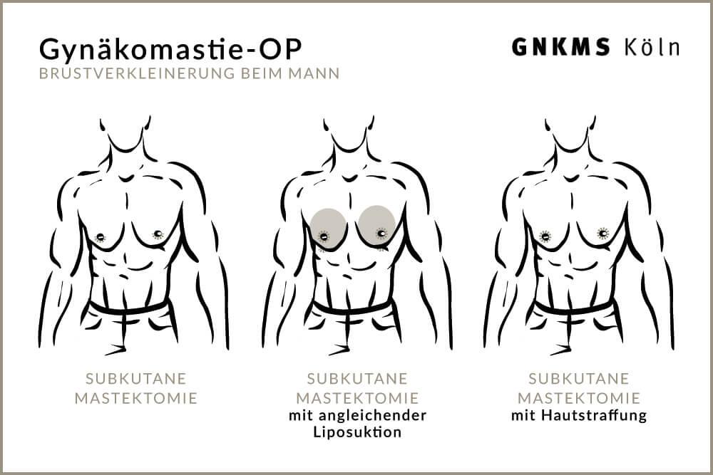 Gynäkomastie-OP Köln